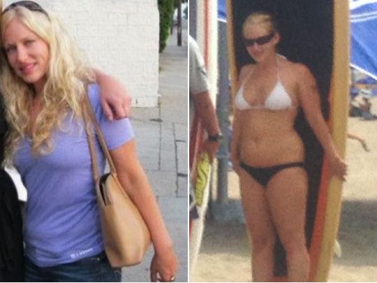 fiamma torres-najera juan m-fairmont weight loss clinic